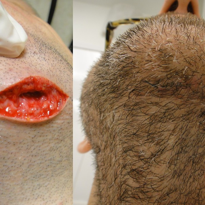 Middle aged male with large, deep chin laceration after sports injury. Before and 1 week after surgical repair.