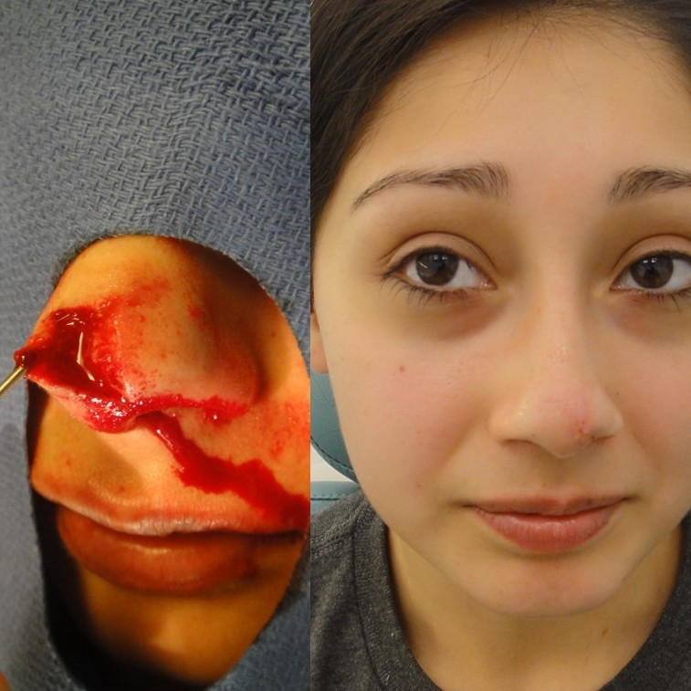 23 year old model who was attacked by a dog that bit off a portion of her nose. Before and 2 weeks after plastic surgical repair.