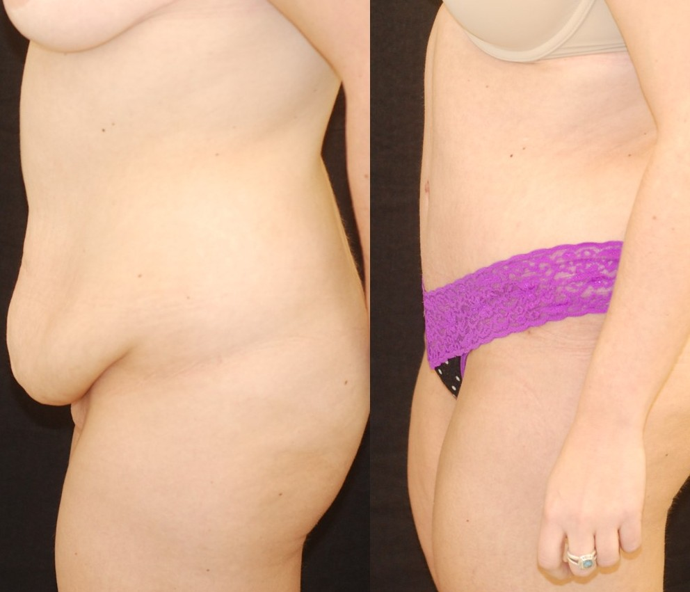 Actual patient of Dr. Devgan, before and 6 weeks after tummy tuck (abdominoplasty)