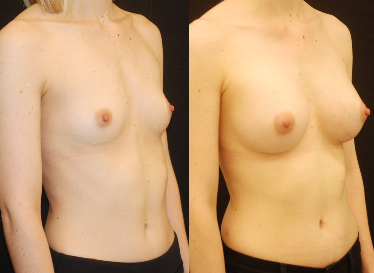 Actual patient of Dr. Devgan, before and 1 month after breast augmentation.
