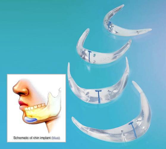 chin implant NYC