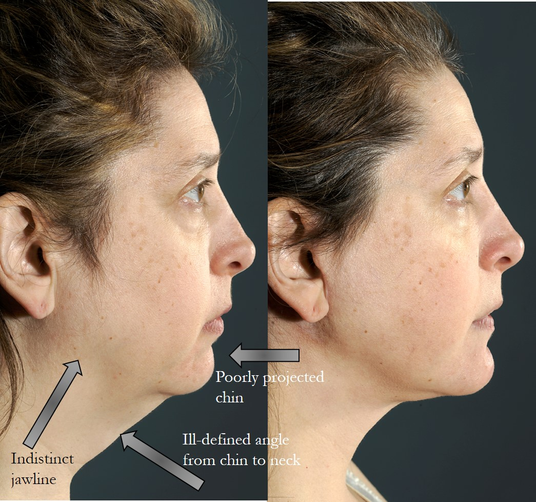 Actual patient of Dr. Devgan, before and after chin augmentation, necklift, and submental (neck) liposuction.