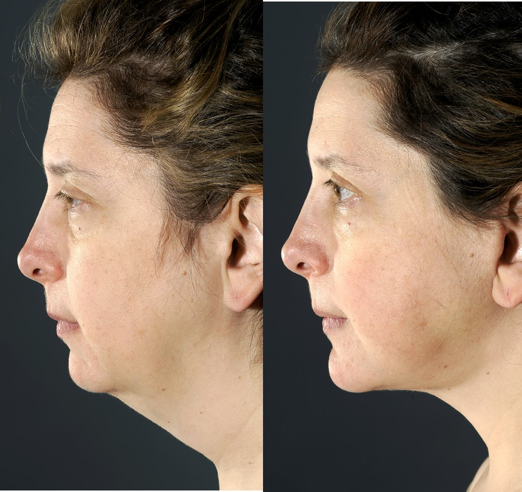 Chin Implant NYC — Lara Devgan, MD, MPH, FACS
