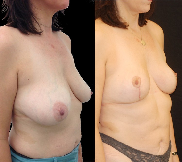Actual patient of Dr. Devgan, before and 8 weeks after breast lift (mastopexy). Scars are immature and will fade to nearly invisible by 1 year.