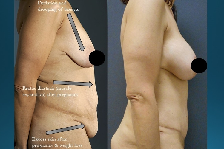 Actual patient of Dr. Devgan, before and after abdominoplasty and breast lift with implants.