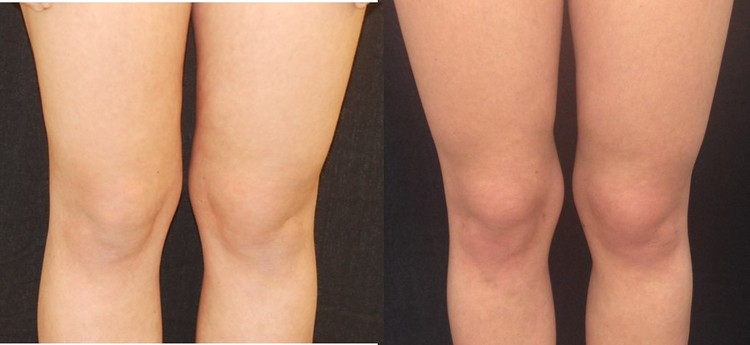 Actual patient of Dr. Devgan, before and after knee liposuction.