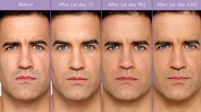 Actual patient, b  efore and a  fter Botox. Image credit Allergan. Botox lasts 3-4 months in most people.