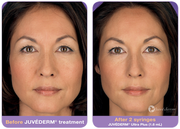 Actual patient, before and after Juvederm to Nasolabial Folds. Image credit Allergan. Juvederm lasts 3-4months in most people.