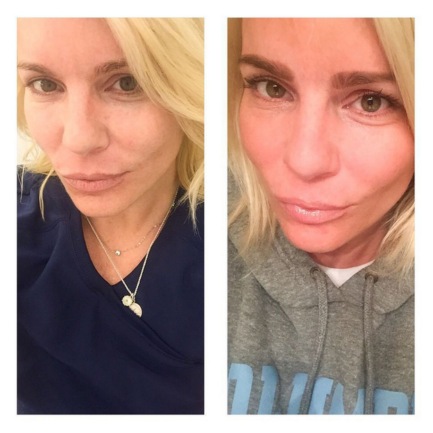 Self-portrait photographs submitted by patient, via Instagram, before & after Dermapen Microneedling, 7/29/15