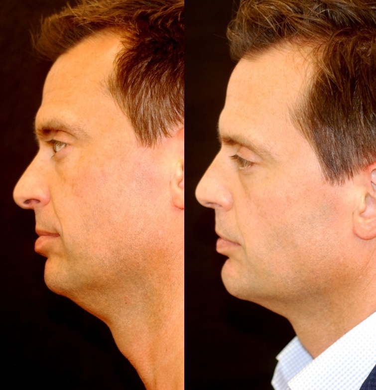Actual patient of Dr. Devgan, before and after chin augmentation, submental (neck liposuction), and rhinoplasty.