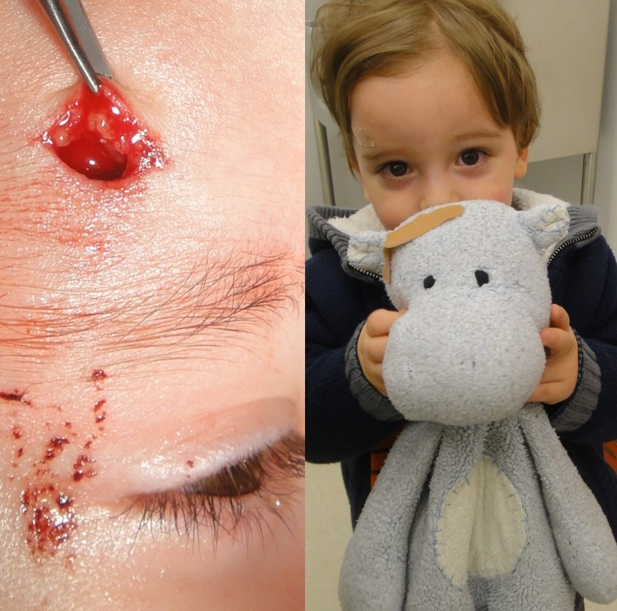 Actual patient of Dr. Devgan, before and after facial laceration repair.