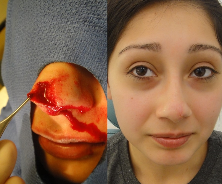 Actual patient of Dr. Devgan, before and after repair of nasal dog bite injury/ facial laceration.