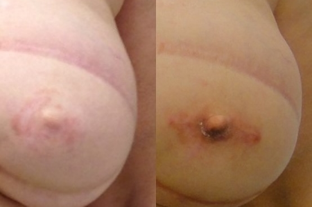 Secondary (second time) nipple reconstruction, 10 years after the initial reconstruction. Actual patient of Dr. Devgan.