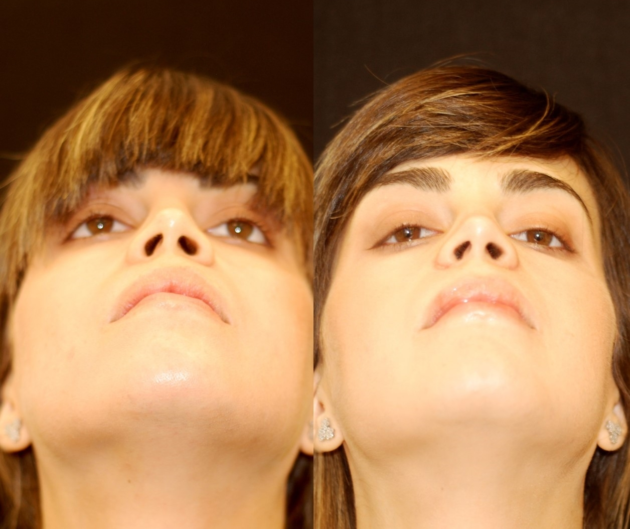 Actual patient of Dr. Devgan, before and 3 weeks after alar base reduction rhinoplasty