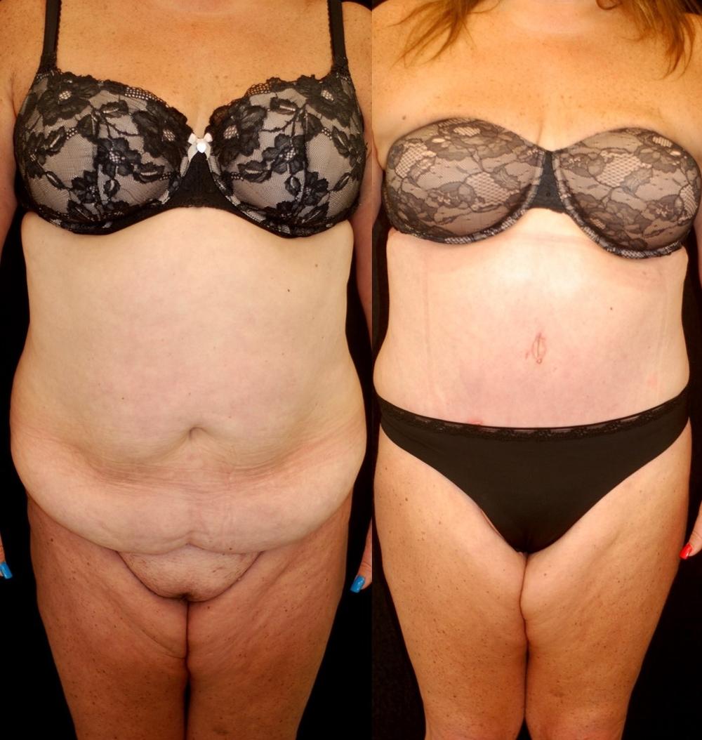Abdominoplasty and Liposuction after Massive Weight Loss — Lara ...