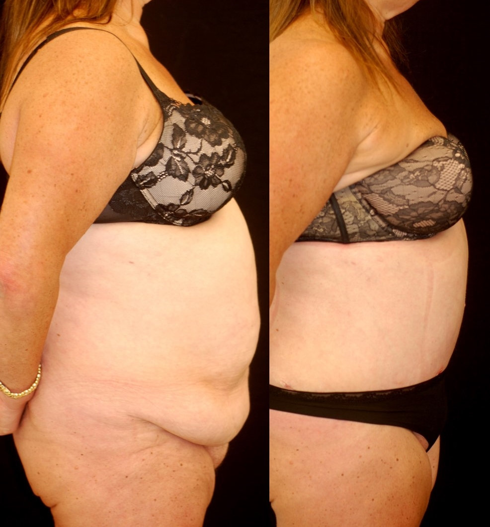 Actual patient of Dr. Devgan, before and 3 weeks after abdominoplasty (tummy tuck) and liposuction, following massive weight loss.