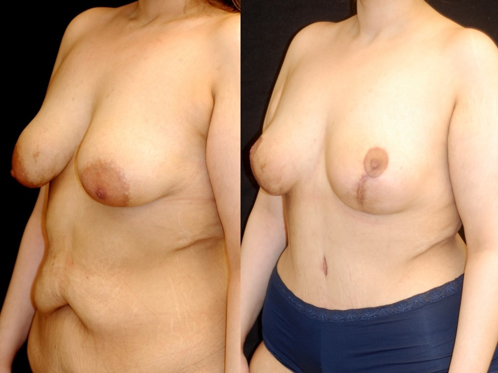 Actual patient of Dr. Devgan, before and 4 weeks after breast lift (mastopexy) and abdominoplasty (tummy tuck). Scars are immature and will fade to nearly invisible by 1 year.
