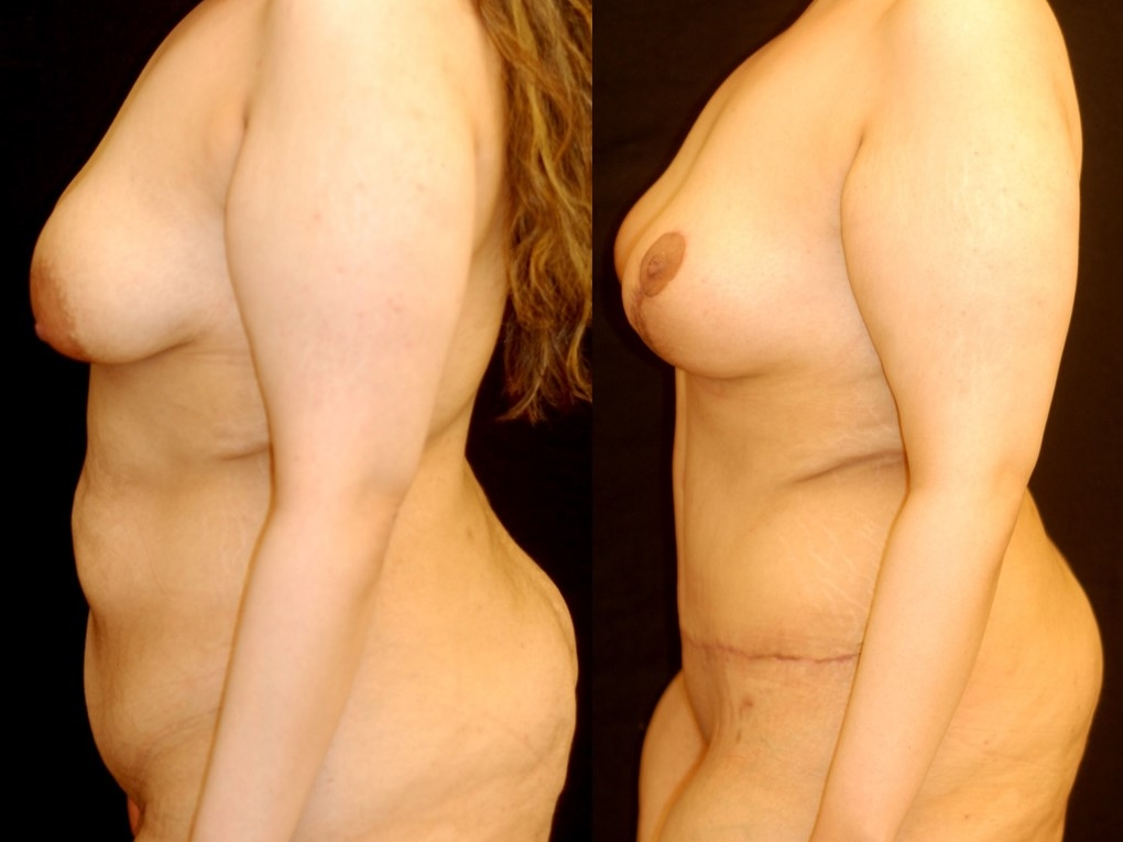 Actual patient of Dr. Devgan, before and after abdominoplasty and mastopexy (breast lift)  .