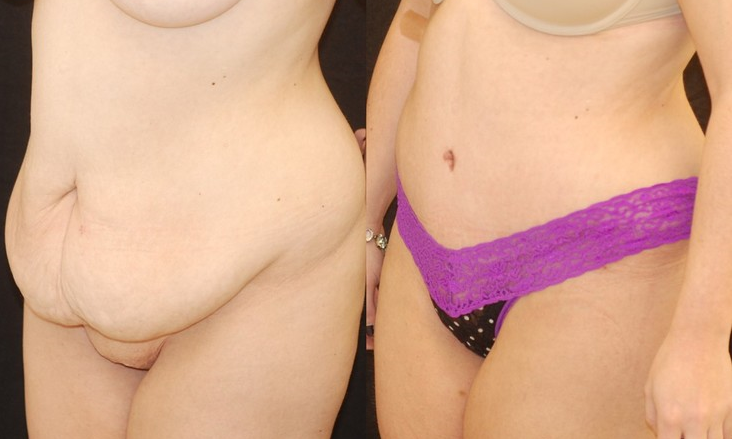 Actual patient of Dr. Devgan, before and after abdominoplasty.