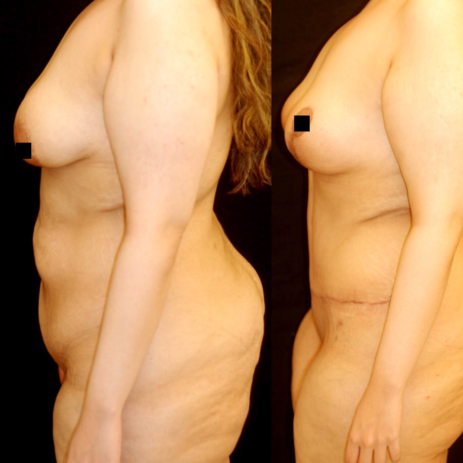 Actual patient of Dr. Devgan, before and 1.5 months after tummy tuck (abdominoplasty) and breast lift (mastopexy).