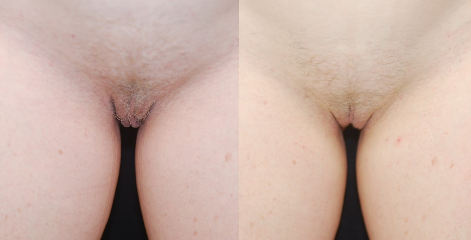 Actual patient of Dr. Devgan, before and 3 months after labiaplasty. This is a middle-aged woman with labia minora excess and perineal excess, corrected with a combination of modified wedge technique and direct excision of perineal tissue.