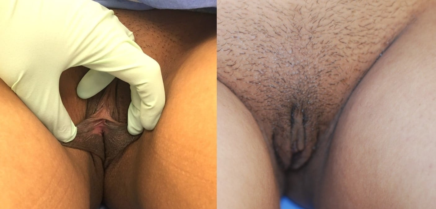 Actual patient of Dr. Devgan,before and 1 week after labiaplasty. This is a young woman with labia minor excess and mild clitoral hood excess, corrected with a modified wedge technique and clitoral hood reduction. This surgery was done under local anesthesia only.
