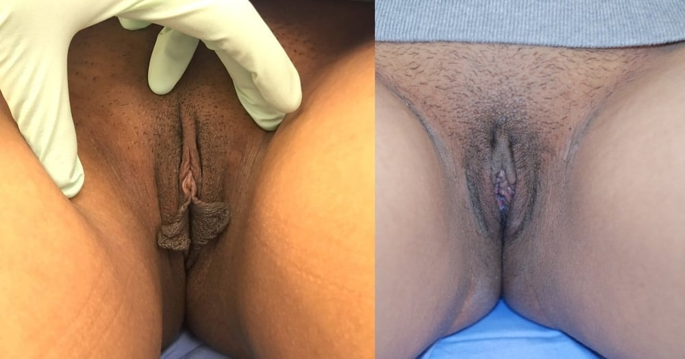 Actual patient of Dr. Devgan, before and 1 week after labiaplasty.