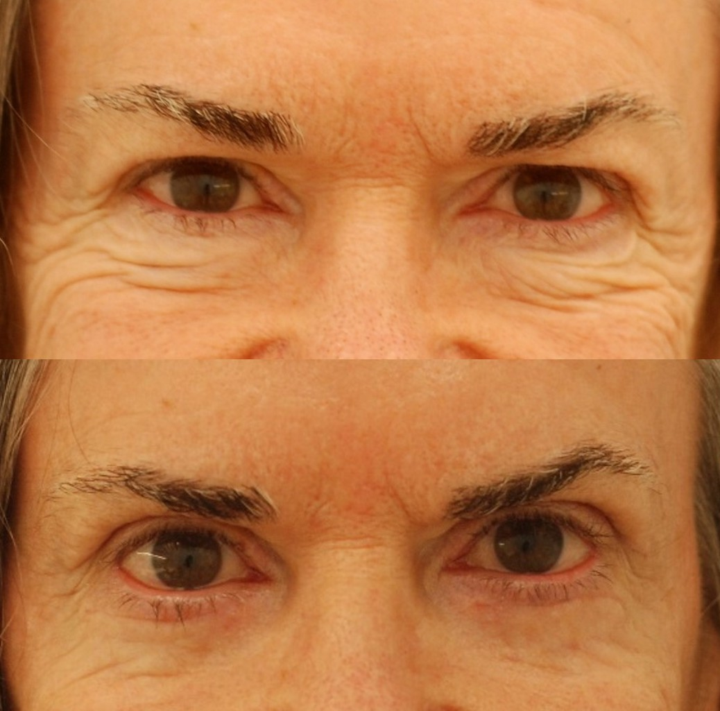 Actual patient of mine, before and just 2 weeks after upper and lower eyelid blepharoplasty. Close-up view