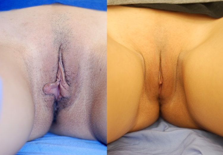 Actual patient of Dr. Devgan, before and after labiaplasty.