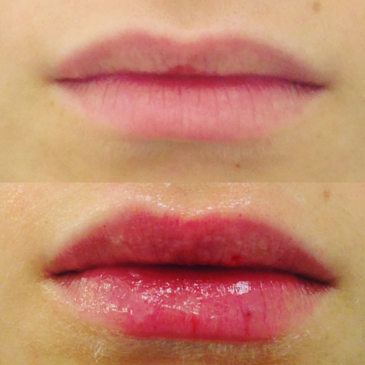 Actual patient of Dr. Devgan, before and after lip augmentation with Juvederm, New York City