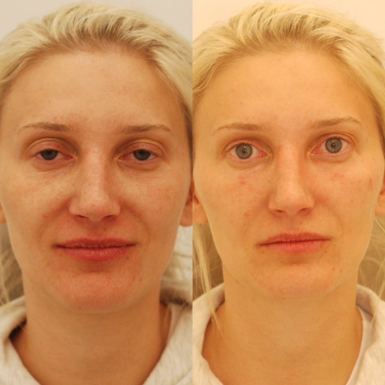 Actual patient of Dr. Devgan, before and after under-eye augmentation