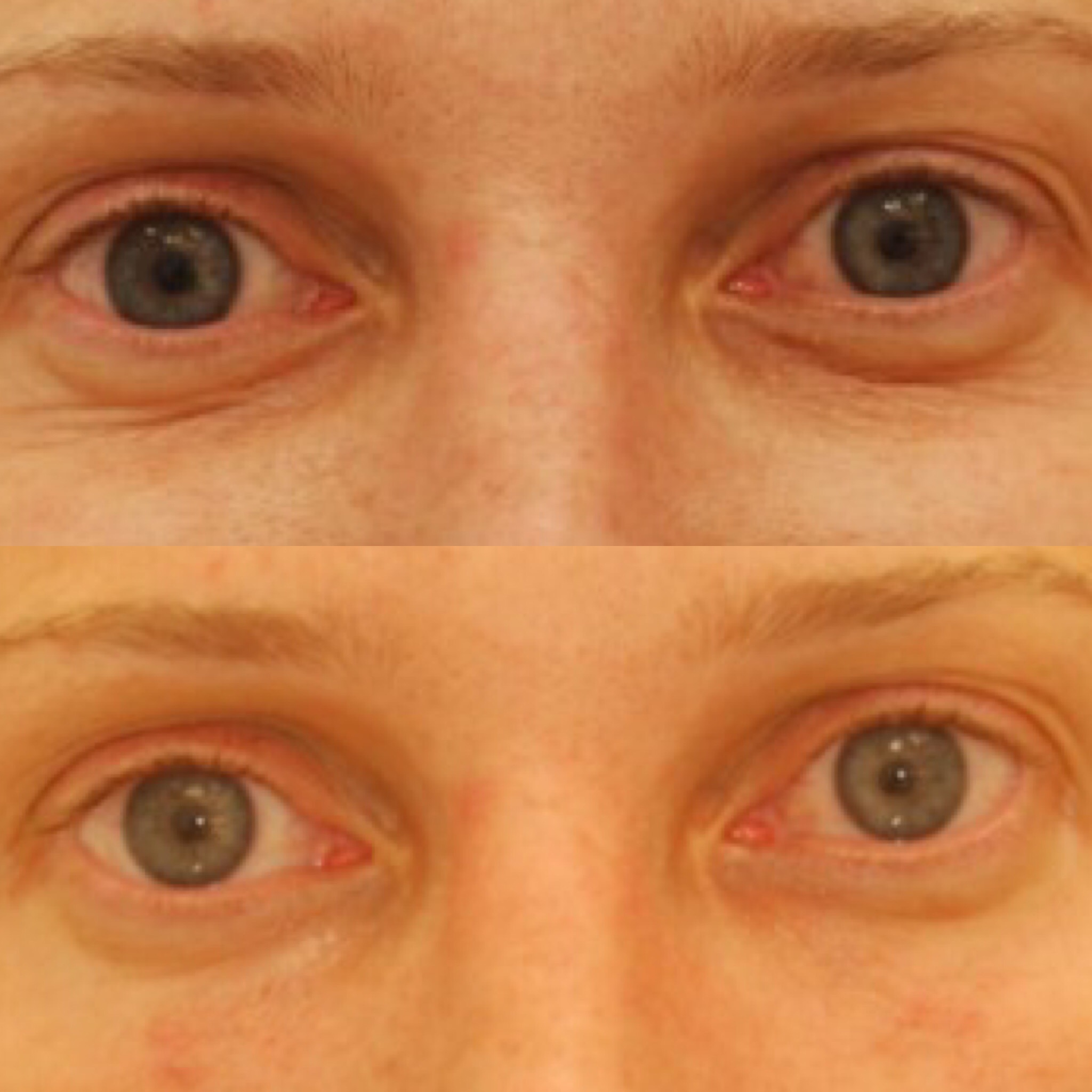 Actual patient of Dr. Devgan, before and immediately after tear trough filler