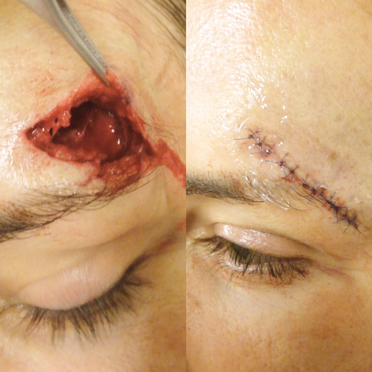Actual patient of Dr. Devgan, before and immediately after laceration repair