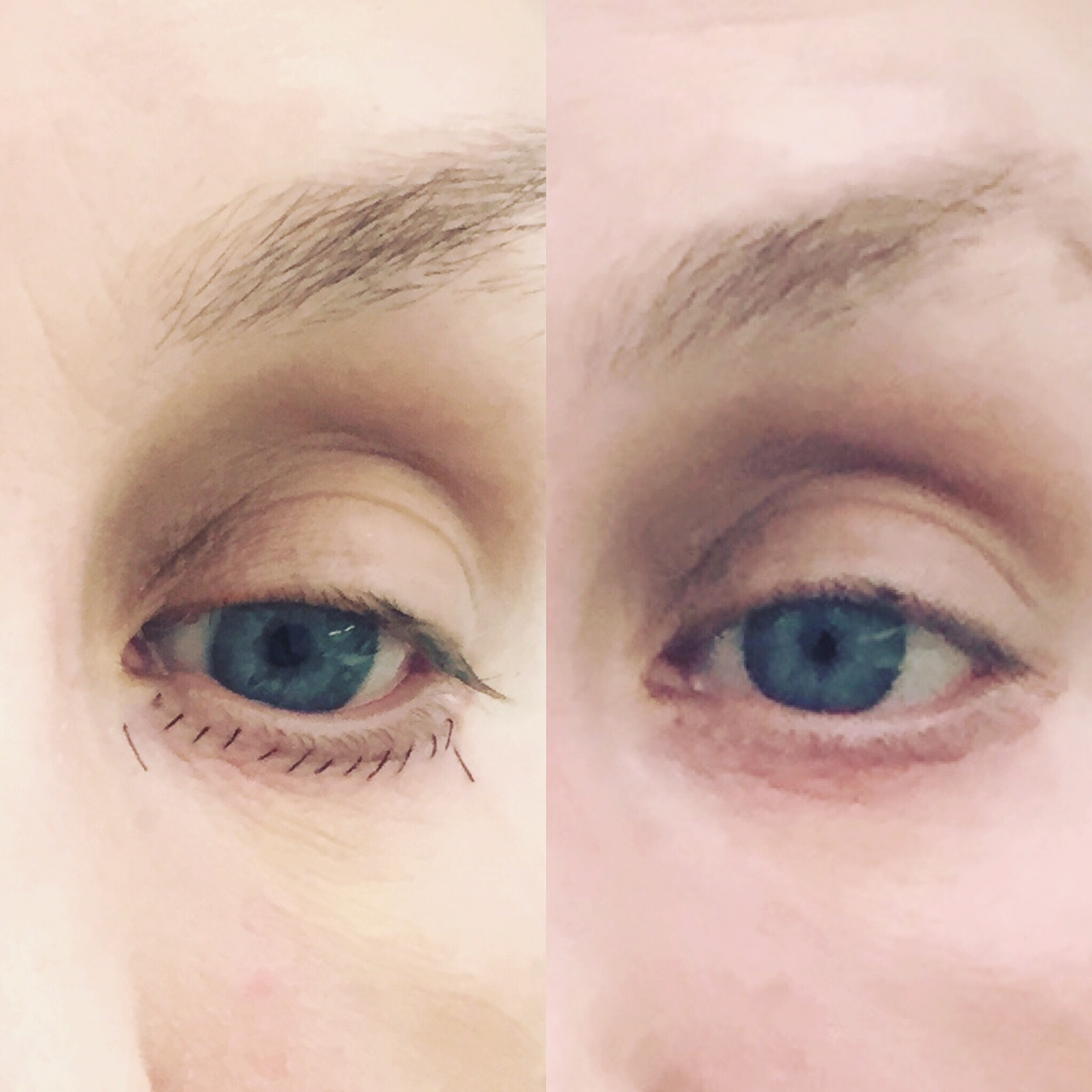 Actual patient of Dr. Devgan, immediately after (left), and 6 days after (right) lower eyelid blepharoplasty. New York City