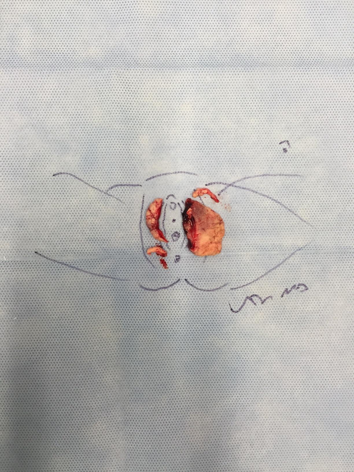 Surgical specimen from a recent labiaplasty patient of Dr. Devgan