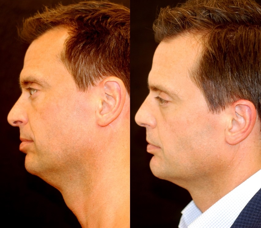 Chin augmentation with chin implant. Adjunctive procedures: submental liposuction, rhinoplasty.Actual patient of Dr. Devgan