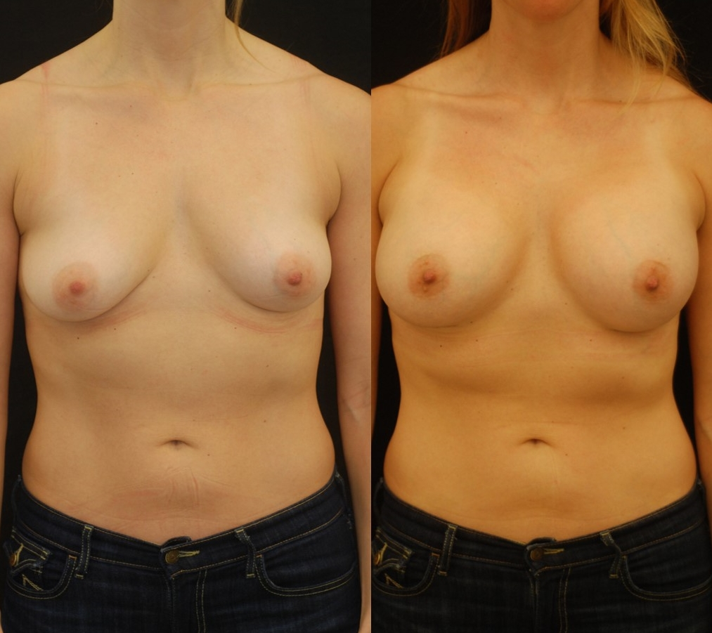 Actual patient of Dr. Devgan, before and 2 months after breast augmentation with internal lift. Note the improvement in 1) symmetry, 2) droopiness, and 3) contour of the breasts-- all without scars on the front of the breast.