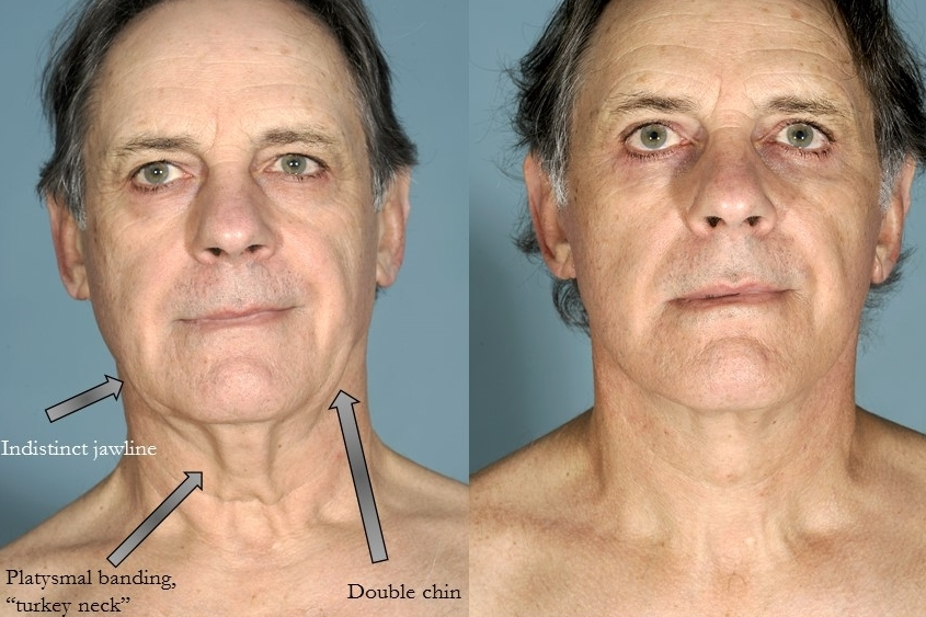 Actual patient of Dr. Devgan, before and after necklift
