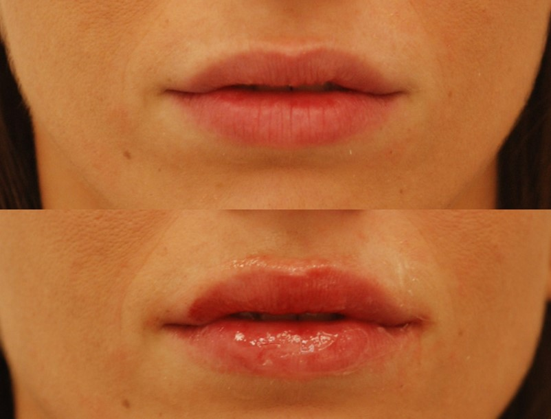 This actual patient had a small contour deficiency of her left upper lip (right side of the photo), where her mouth is open (top photo). Her lips were corrected by Dr. Devgan with near perfect symmetry (bottom photo).