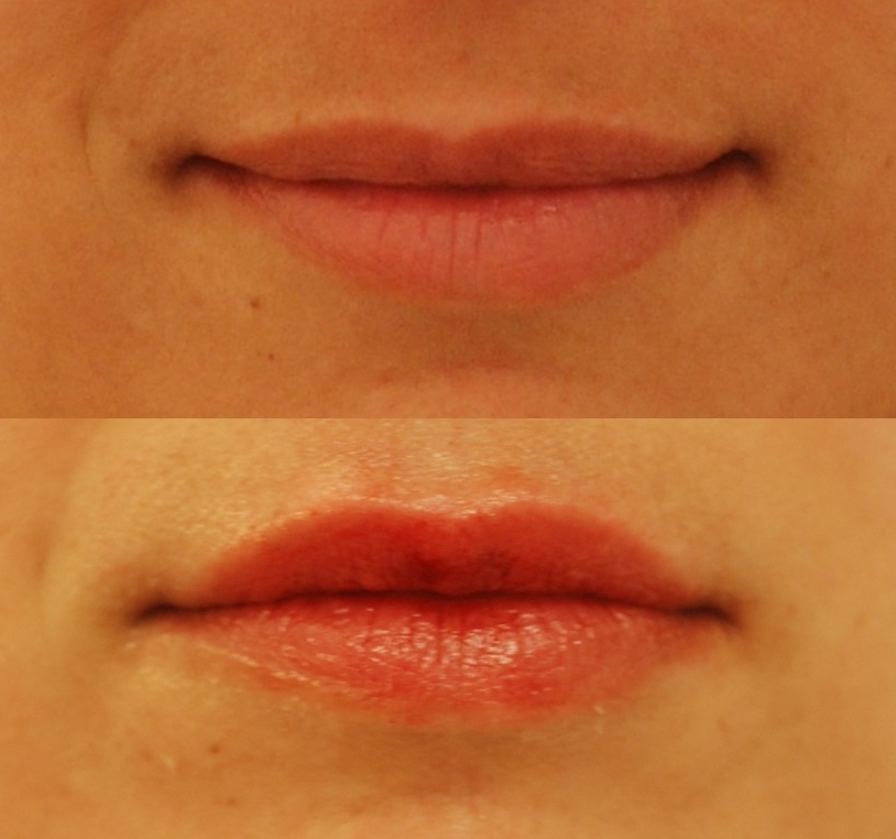 This actual patient of Dr. Devgan had previously experimented with lip filler that left her lips looking too large and unnatural. Dr. Devgan added volume to her upper lip to give her a more voluptuous, full appearance, while maintaining a natural look (bottom photo).