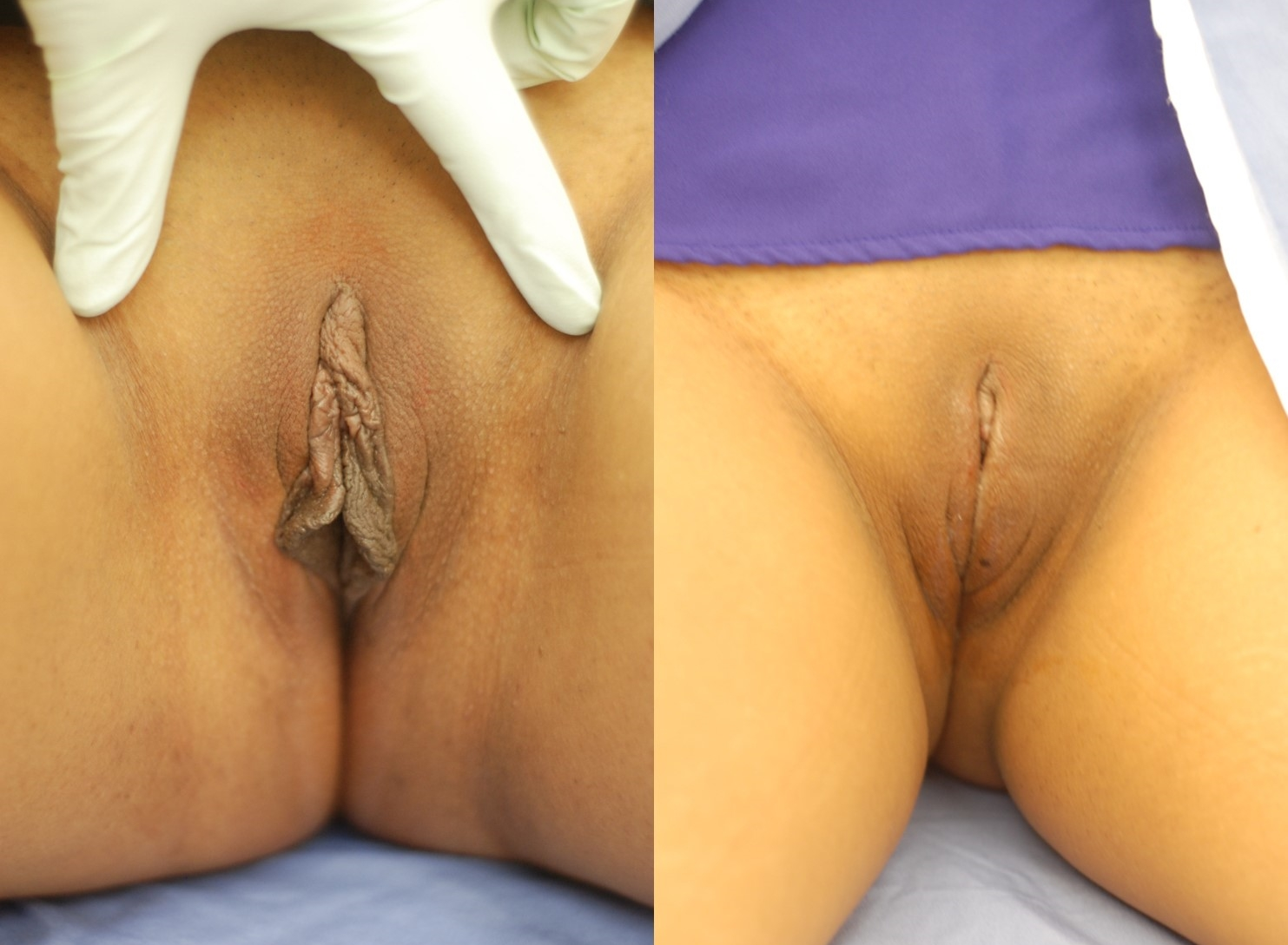 Actual patient of Dr. Devgan, before and 6 days after labiaplasty, New York City. All scars are hidden.