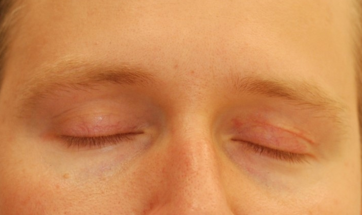 Actual patient of Dr. Devgan, before and after upper eyelid blepharoplasty. Result is 3 months postop. New York City.