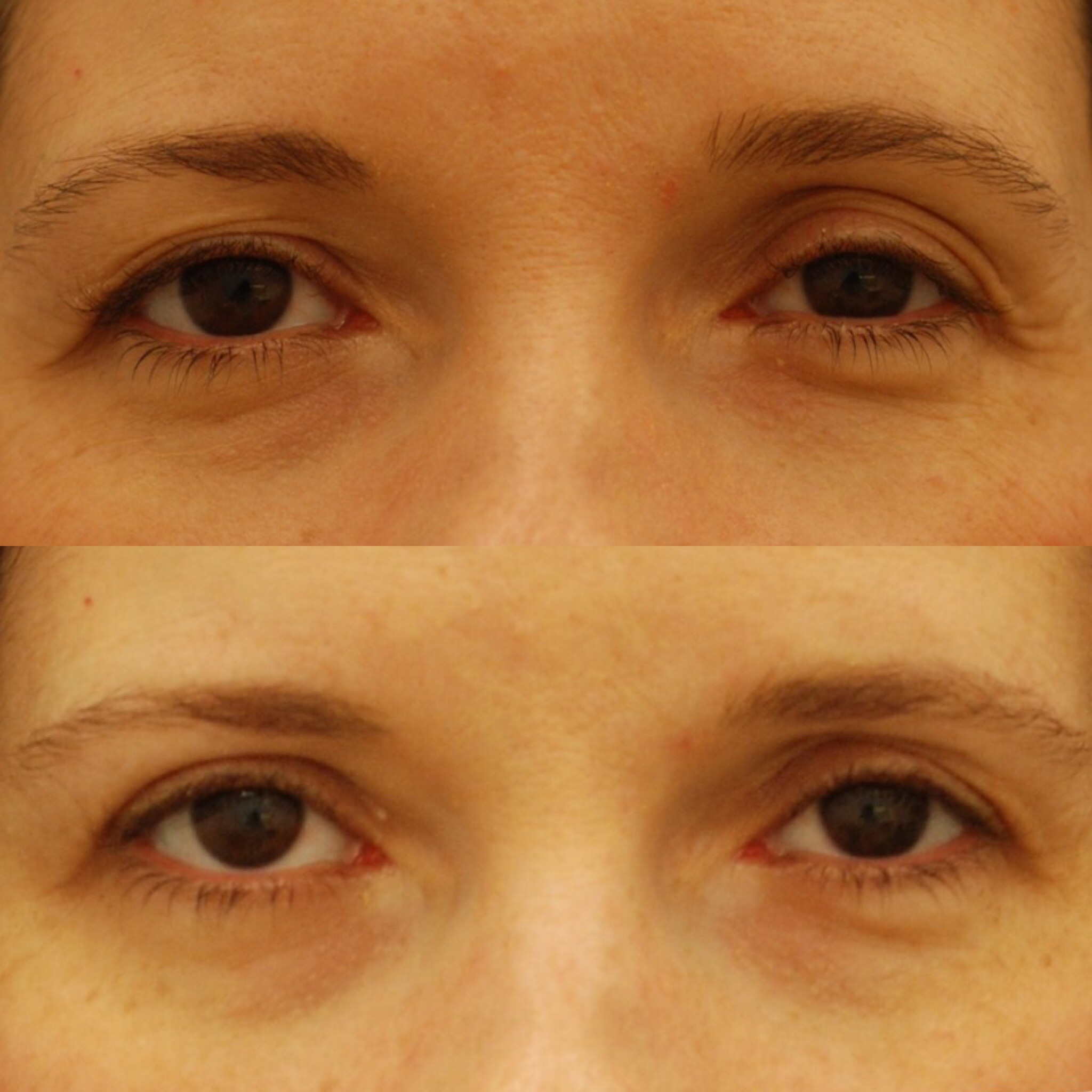 Actual patient of Dr. Devgan, before and after upper eyelid blepharoplasty. Result is 5 weeks postop. New York City.