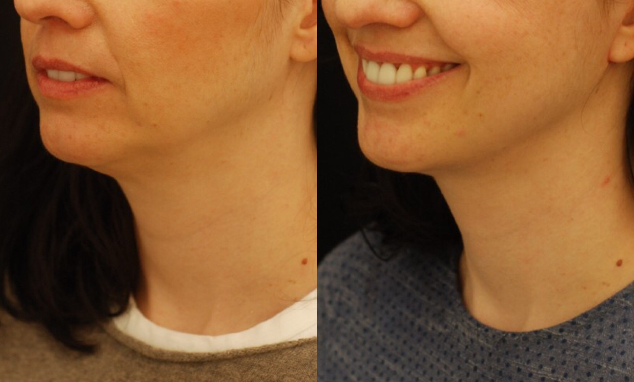 Actual patient of Dr. Devgan, before and 5 weeks after facelift. Note the improvement in her jawline, neck, and under-the-chin contour.