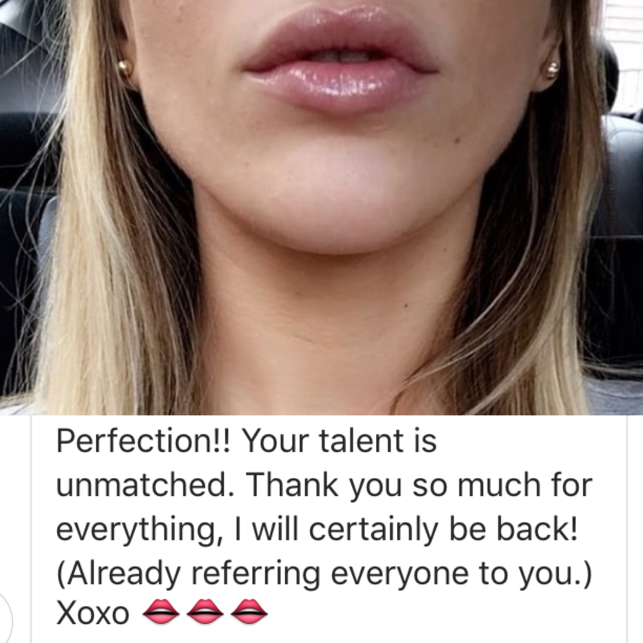 Photo and note from a lip augmentation patient