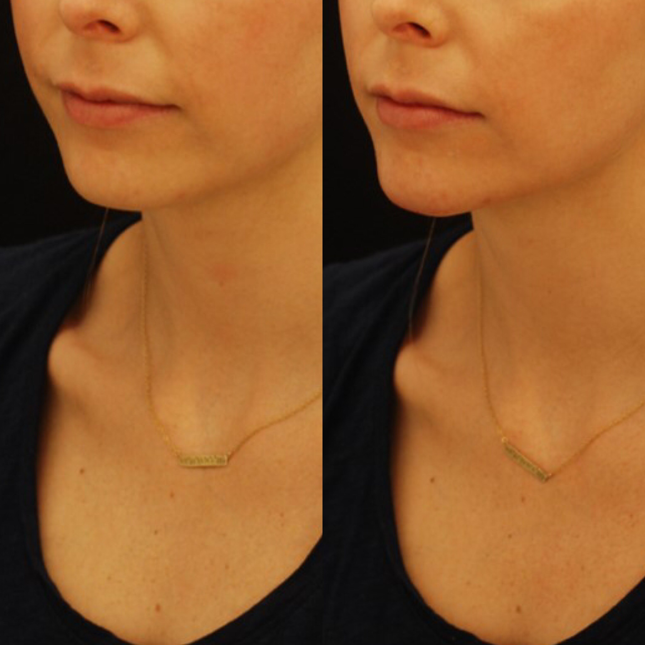 Actual patient of Dr. Devgan, before and after chin augmentation to lengthen a rounded face and strengthen the profile.