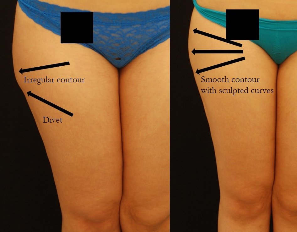 Actual revision liposuction patient of Dr. Devgan, before and 6 days after surgery.
