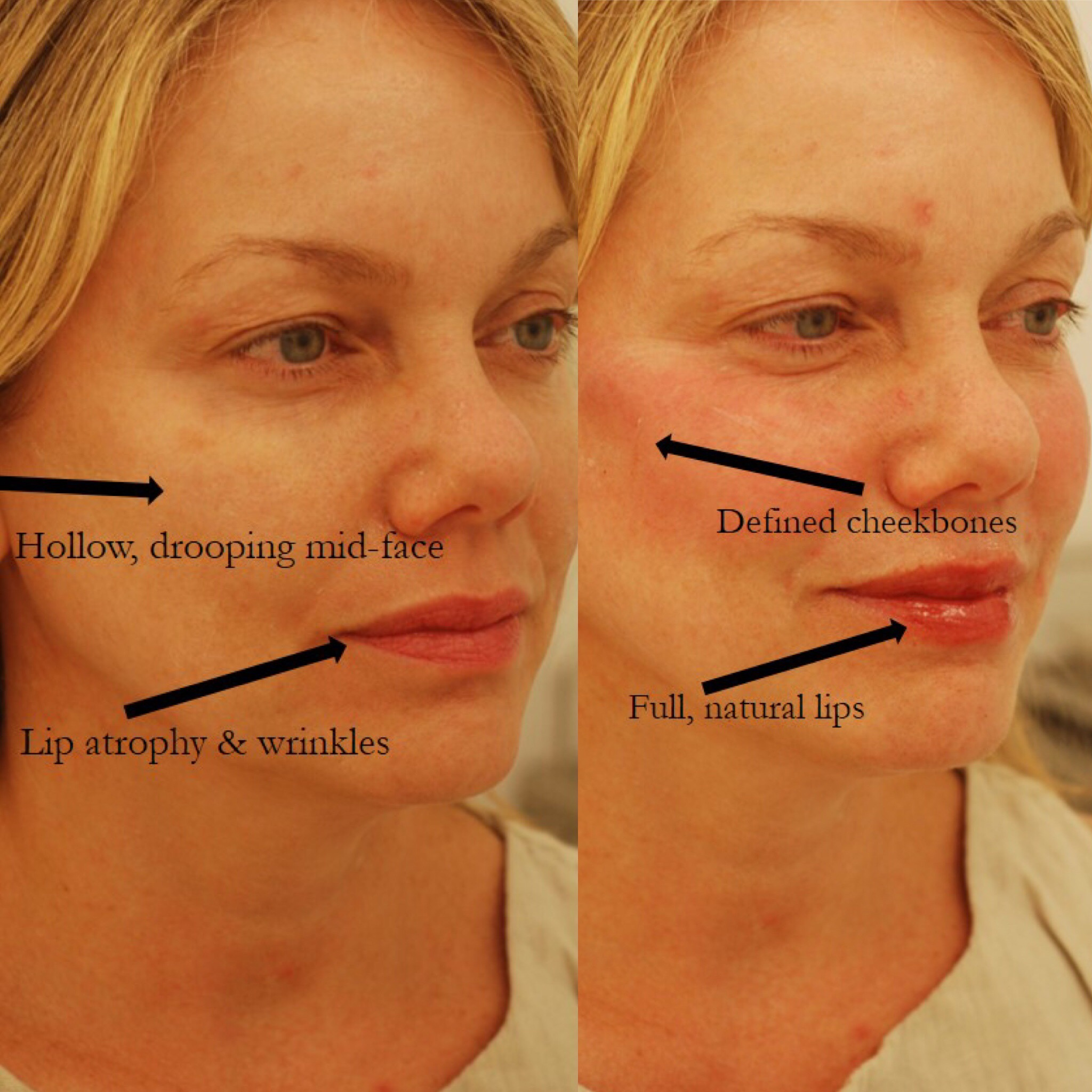 Actual patient of Dr. Devgan, before and after Botox to forehead/ crows feet/ glabella/ DAOs, Juvederm to lips, Voluma to cheekbones.