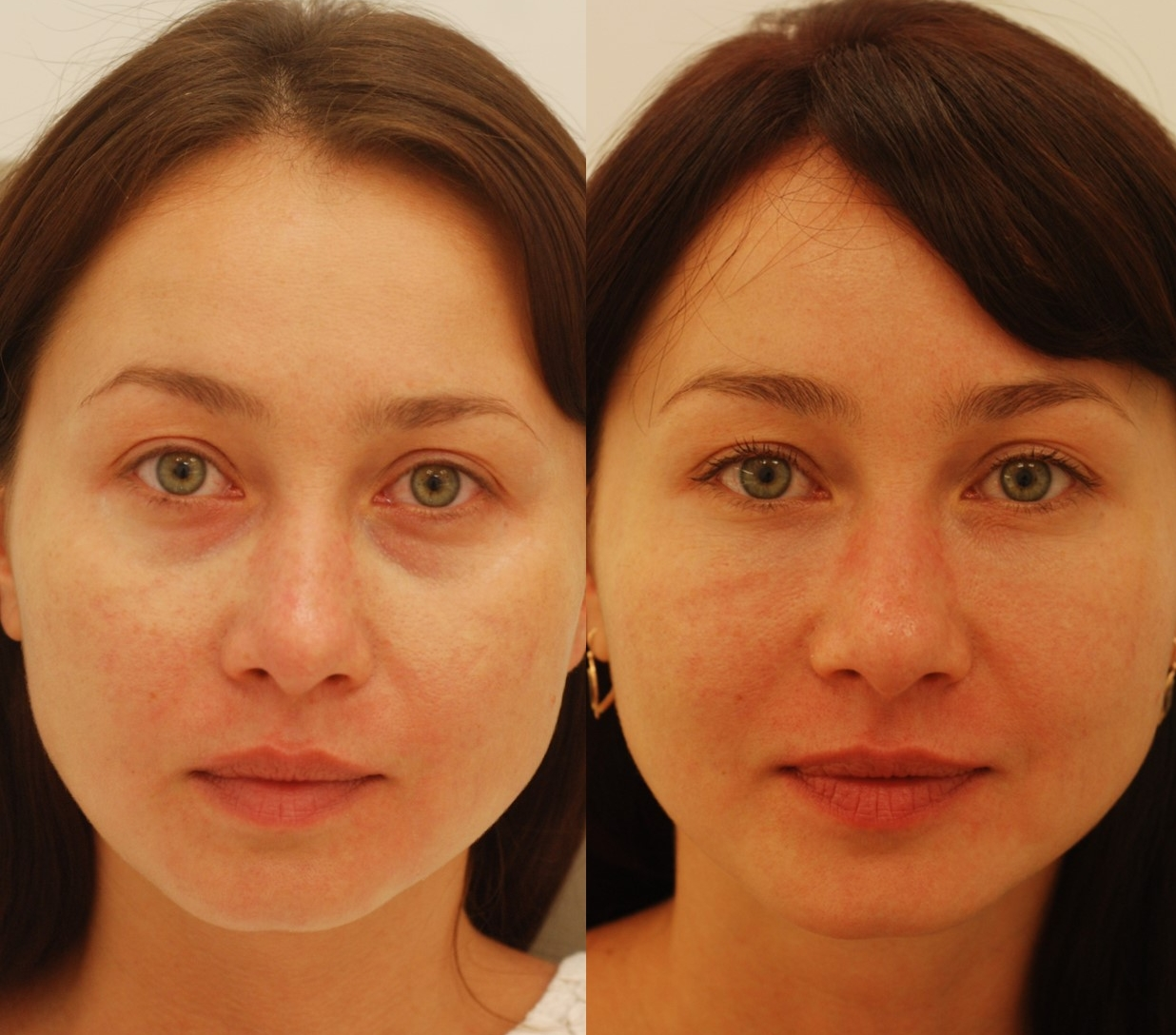 Actual patient of Dr. Devgan, before and after tear trough injection
