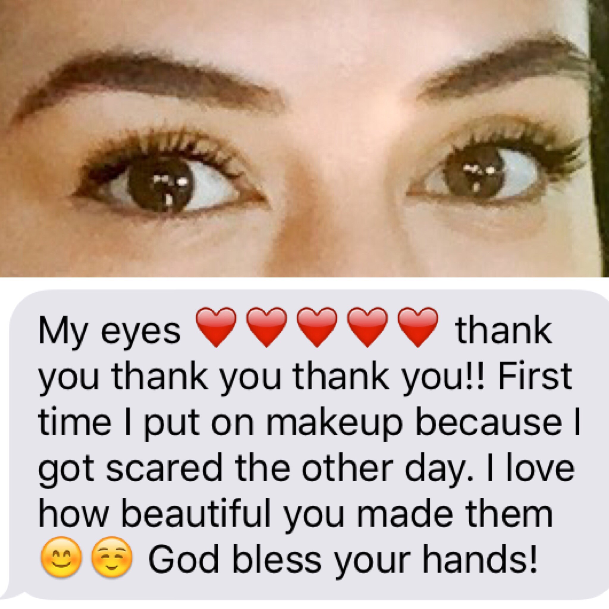 Message and photo from an upper and lower eyelid blepharoplasty (eyelift) patient, 7/2016